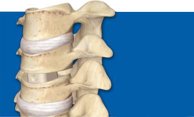 deburring back implants in PEEK