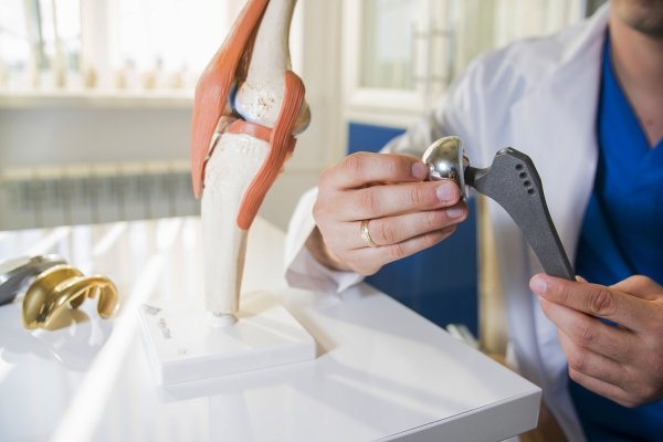 Picture of a doctor holding parts of a knee replacement next to a model of a human knee